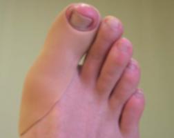 orthoplastie